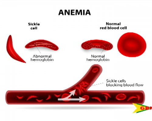 Sickle Cell Association of Grenada – The Connection